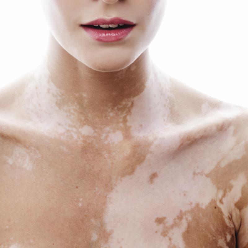 vitiligo.png